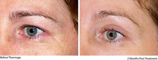 Before & After Thermage Eye 3
