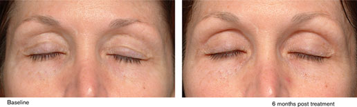 Before & After Thermage Eye 4