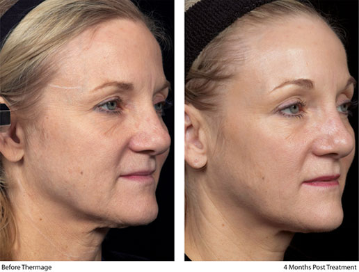 Before & After Thermage Face 3