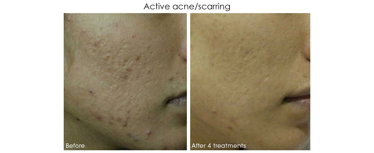 Micro-Needling Acne Scar Treatment 2