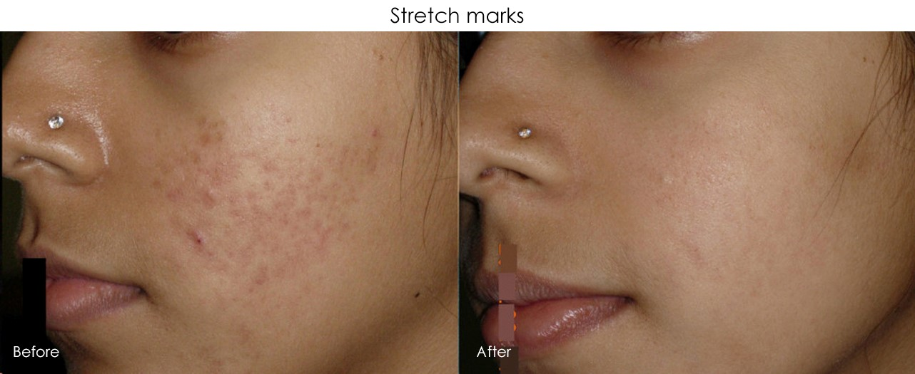 Micro-Needling Stretch Marks Treatment