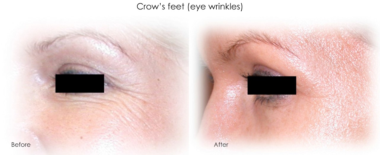 Micro-Needling Eye Wrinkles Treatment