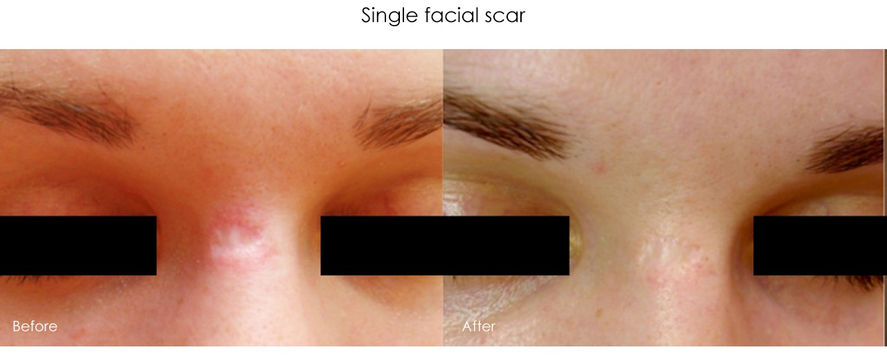Micro-Needling Single Facial Scar Treatment