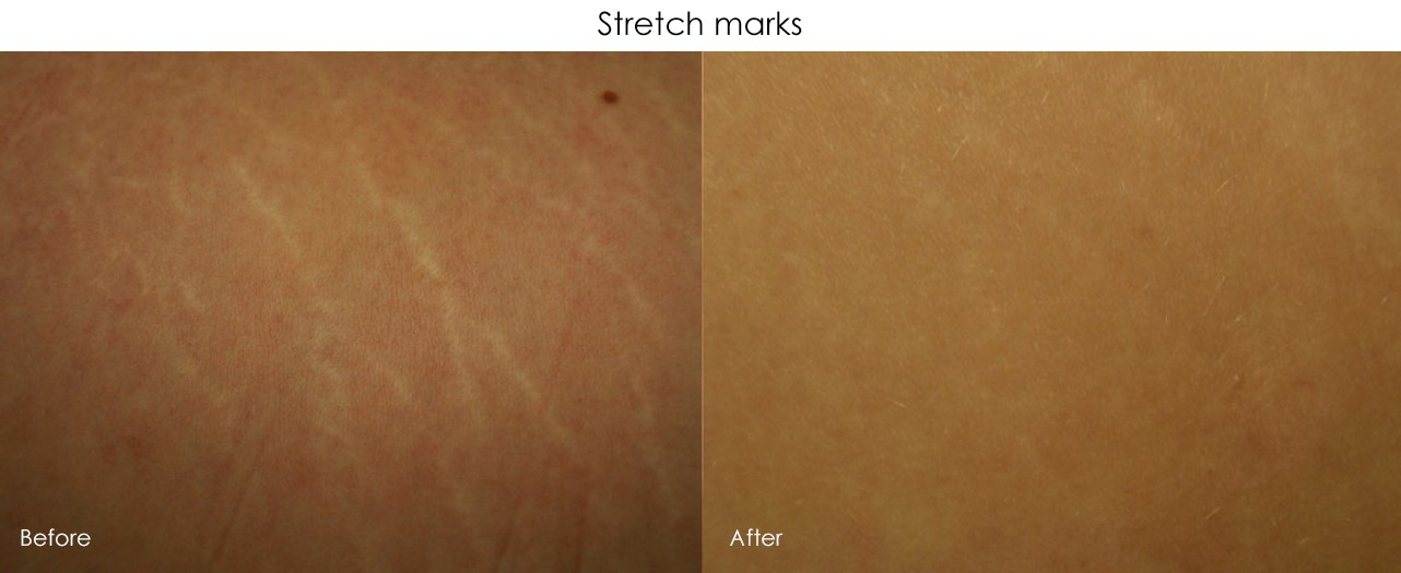 Micro-Needling Stretch Marks Treatment 2