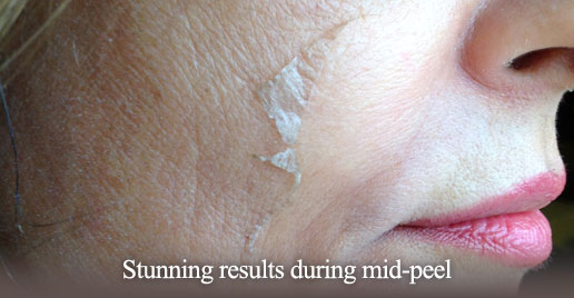Skin Peeling from Treatment
