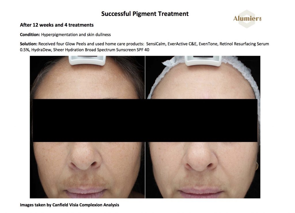 Successful AlumierMD Pigment Treatment Results
