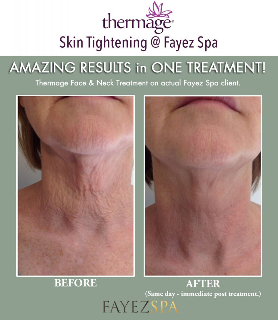 Thermage CPT Treatment London Ontario - Fayez Spa