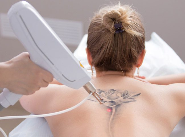 Laser Device removing tattoo from lady