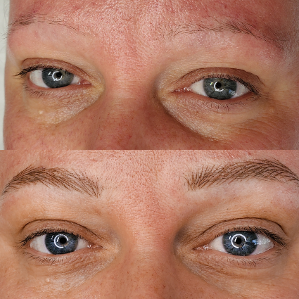 Permanent Makeup Brow Before and After 1